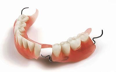 reparar-protesis-dental