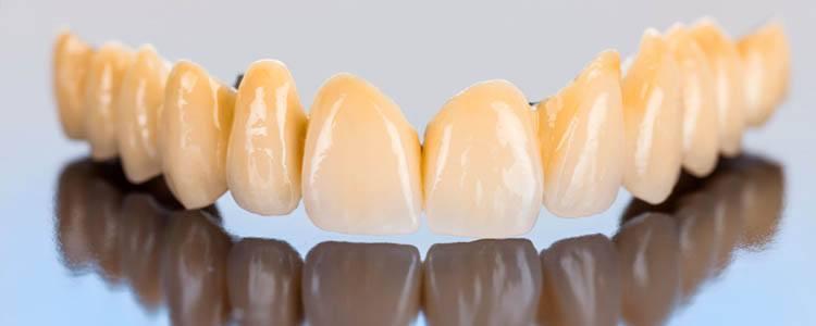 protesis fija para dientes