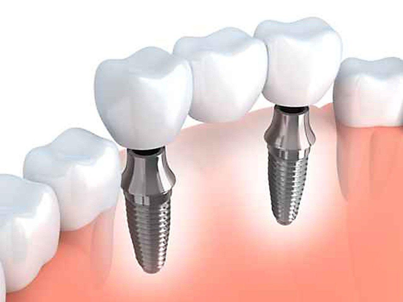 puentes sobre implantes