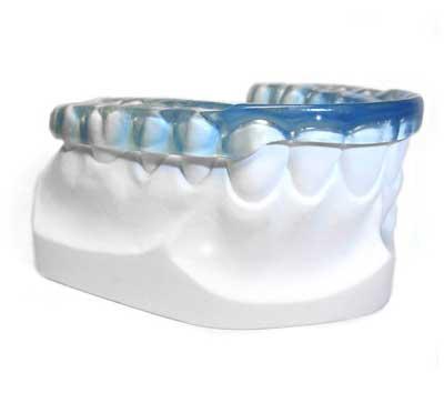 ferula dental para bruxismo
