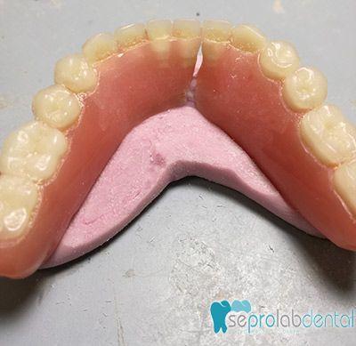 proceso-reparacion-apartado-dental