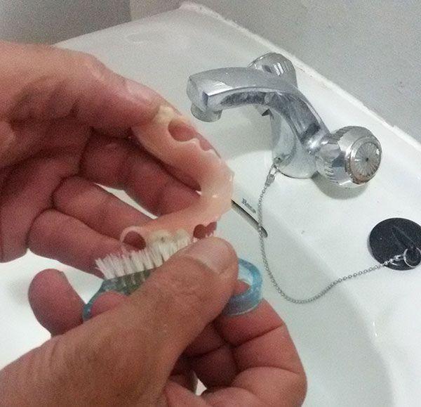 como limpiar protesis dentales removibles