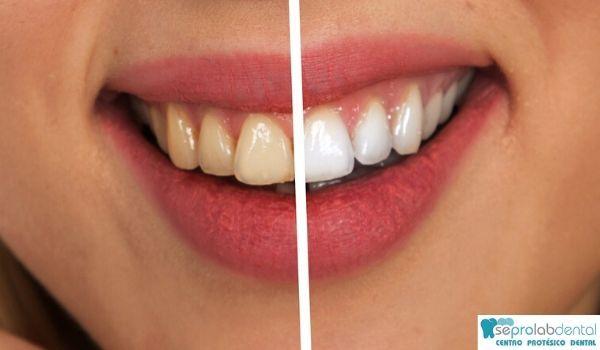 Como blanquear los dientes de una protesis dental